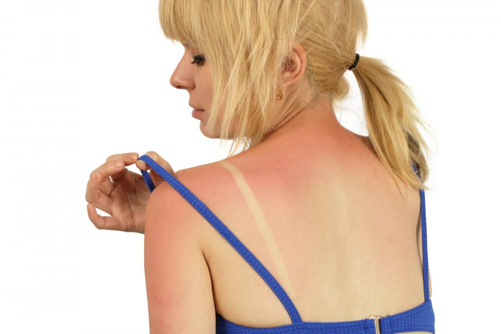 Sunburn Aftercare: A Guide